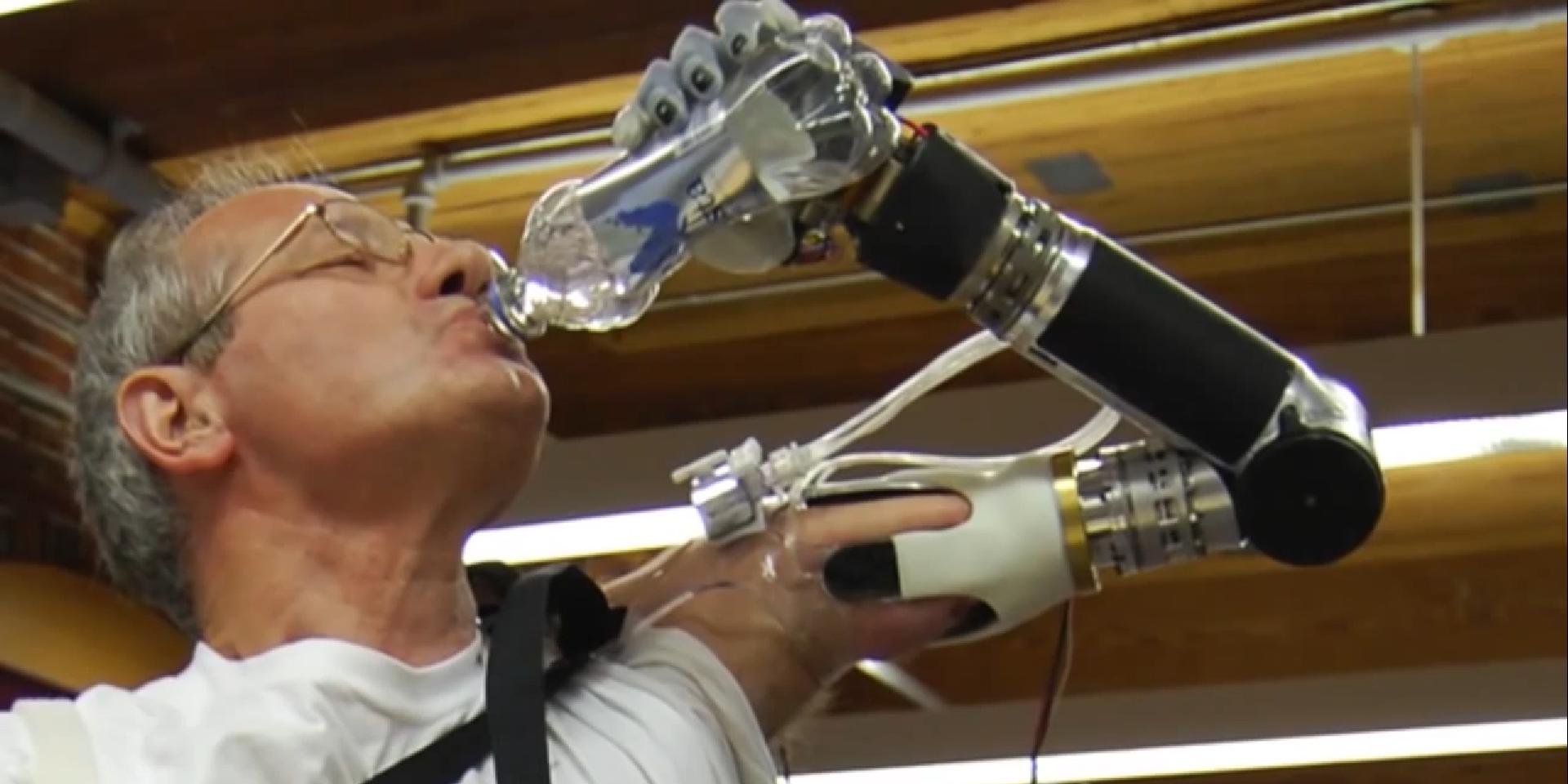 Keven Walgamott dobio novu mehaničku ruku koju može pomjerati mislima