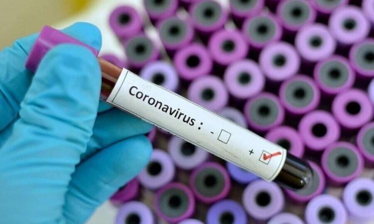 Preminula žena iz Teslića od posljedica koronavirusa