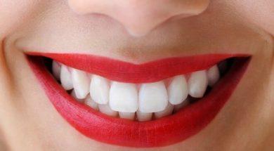 bijeli-zubi