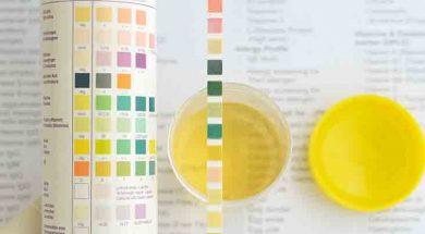 test urina
